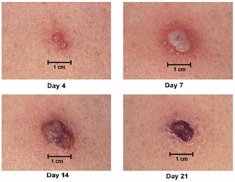 """<img typeof=""""foaf:Image"""" src=""""http://statelibrarync.org/learnnc/sites/default/files/images/vaccinereaction.jpg"""" width=""""467"""" height=""""361"""" alt=""""Smallpox primary vaccine site reaction"""" title=""""Smallpox primary vaccine site reaction"""" />"""
