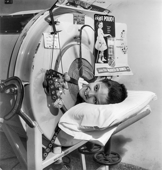"An eight-year-old polio victim in an ""iron lung"" respirator at North Carolina Memorial Hospital in Chapel Hill, ca. 1954. The March of Dimes poster and receptacle for contributions suggest that this may have been a promotional photograph to encourage donations to the campaign against polio. North Carolina Collection, University of North Carolina at Chapel Hill Library."